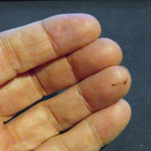 A cut finger