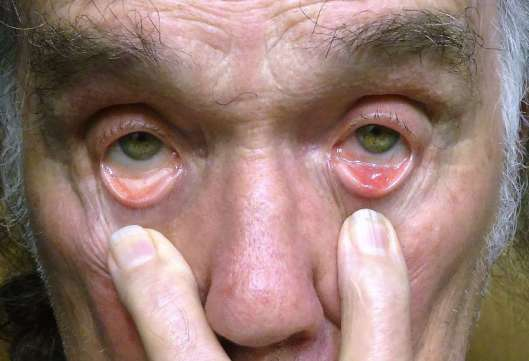 An infected eyelid.