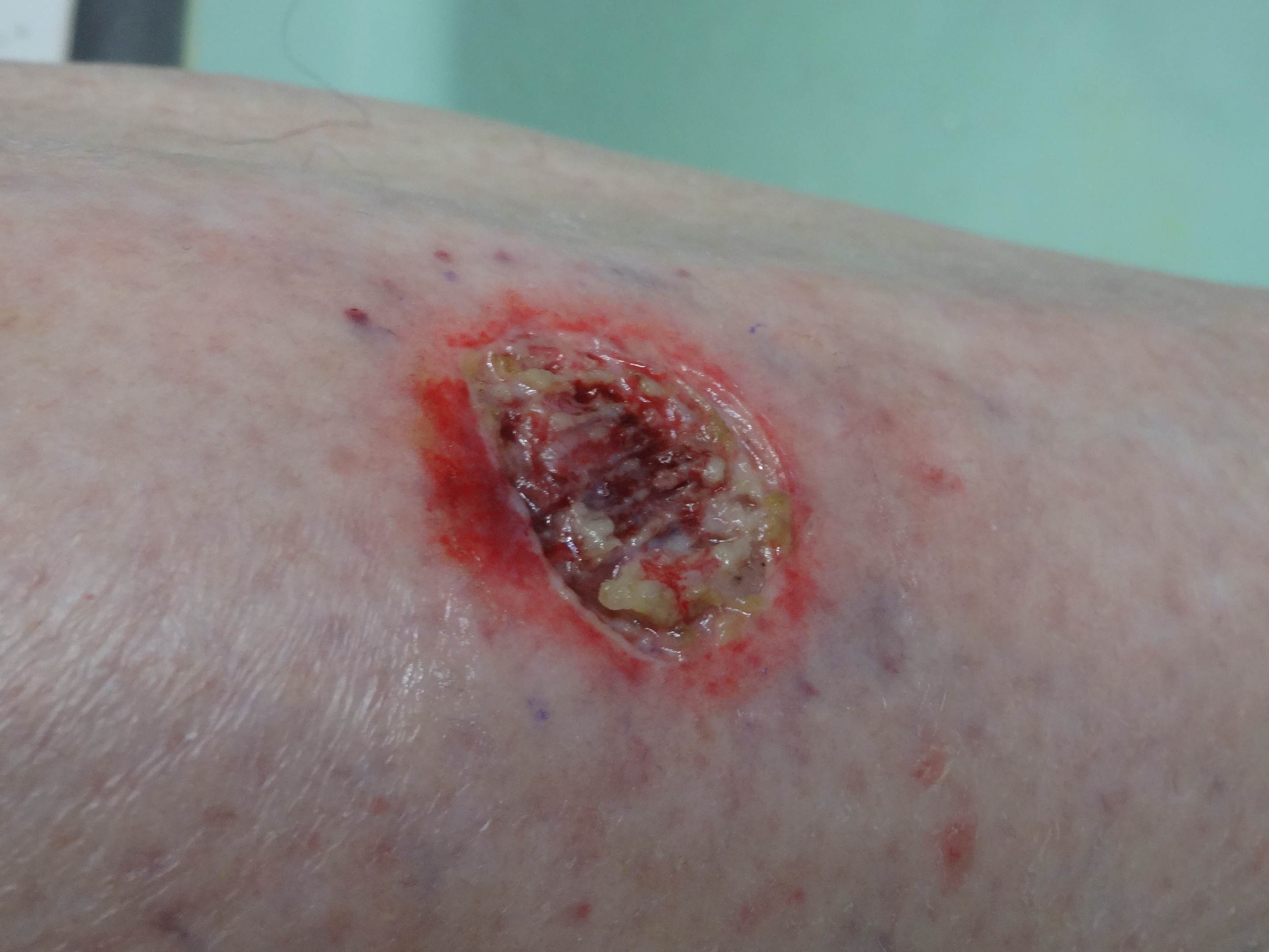 What Are Basal and Squamous Cell Skin Cancers?