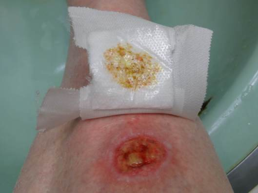 Squamous Cell Carcinoma 14 days after operation
