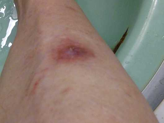 Squamous cell carcinoma July 12, 2016, 2 1/2 months after surgery.
