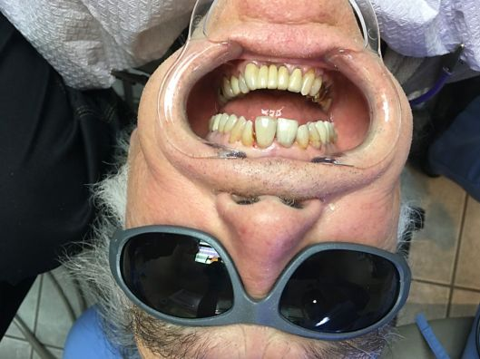 An upside down view as a dentist sees his patients.