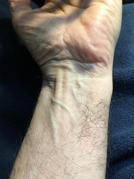 Weird patch of hair on inside of a wrist.