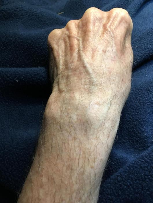 A photo of a normal wrist.